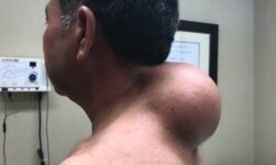 Video: He had a big growth on his neck, the doctor solved his problem!